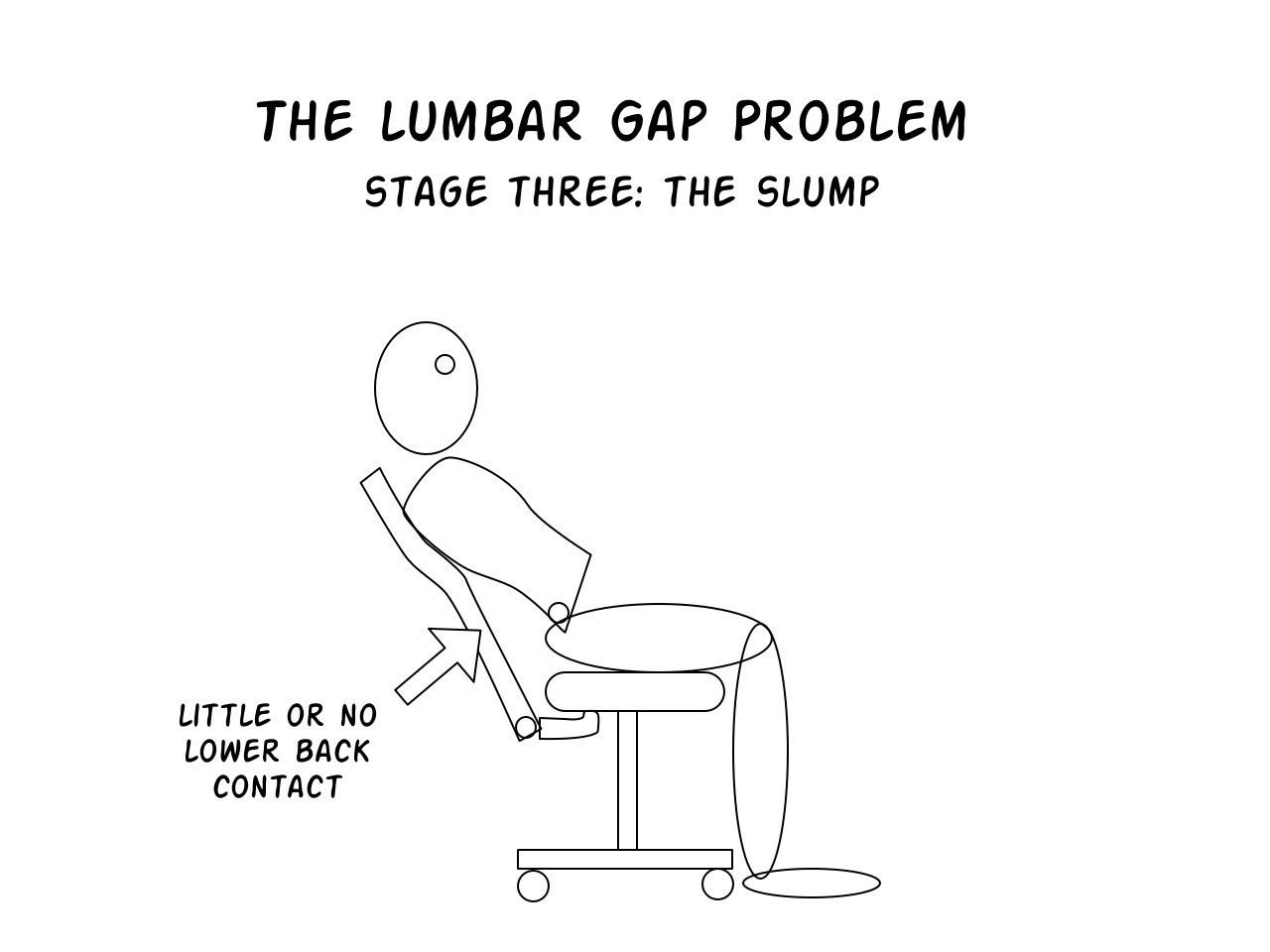 Lumbar Gap Problem stage 3